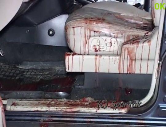 УКиєві неадекватний водій після ДТП порізав ножем молоду жінку