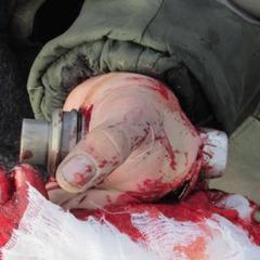 На Одещині під час бойових стрільб боєприпас застряг в кисті курсанта (фото)