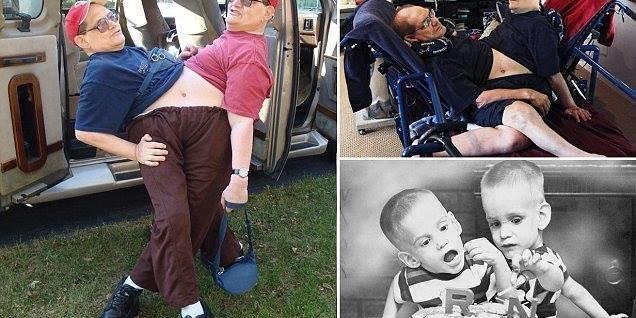 У США померли брати Геліон - найстаріші сіамські близнюки у світі
