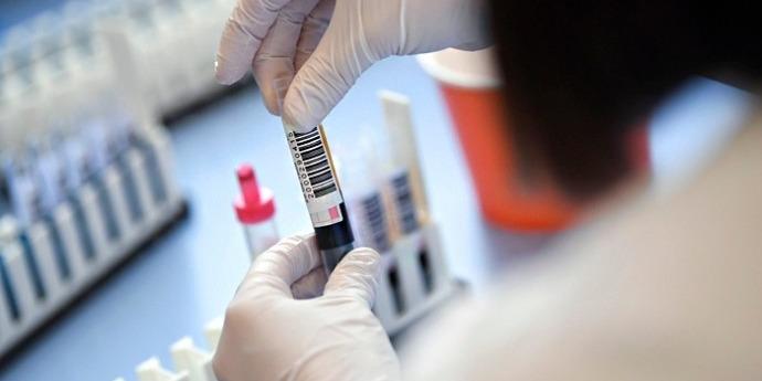 В ООН заявили, що ситуація з коронавірусом вийшла з-під контролю