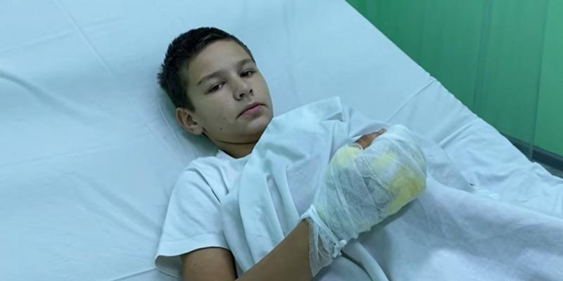 Підпалений хлопчик з Бердянська розповів, що друзі змусили вибирати між вогнем і ударами по голові