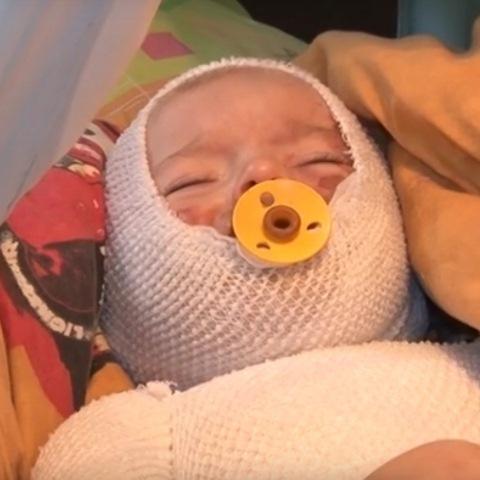 Українців просять допомогти маленькому хлопчику з важкими опіками (ВІДЕО)