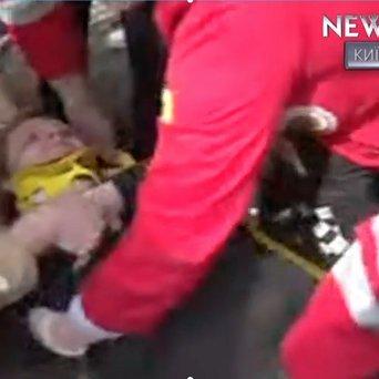 «Тітушки» травмували двох жінок під час бійки на Позняках