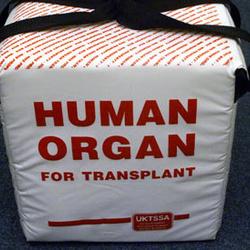 Трансплантологи не заберуть насильно ваші органи, - Мусій