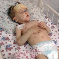 Батьком хлопчика, побитого в Одесі, може бути житель «ДНР»