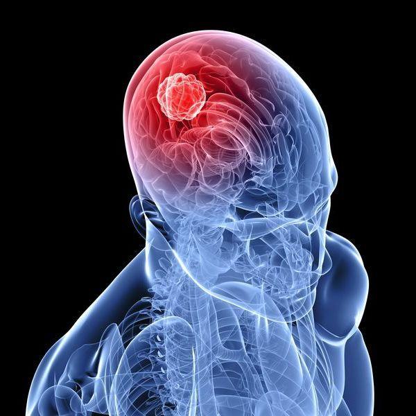 Вища освіта - один із факторів виникнення ракової пухлини, - вчені