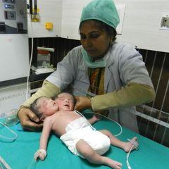 В Індії народилося немовля із двома головами (відео)