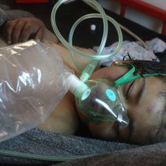 Туреччина: результати розтину доводять застосування хімічної зброї в Сирії