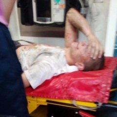 У Львові 18-річний хлопець при падінні з моста зачепив високовольтну лінію