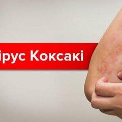 Чим небезпечний вірус Коксакі і як проходить лікування
