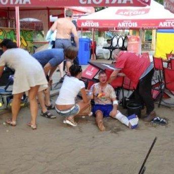 На Полтавщині чоловіки на пляжі влаштували бійку із застосуванням зброї: один загиблий, важкопоранена дитина (фото, відео)
