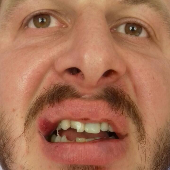 Священник УПЦ МП вибив зуб настоятелю церкви Київського Патріархату