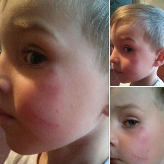 На Київщині розгорівся скандал через завідувачку дитсадка, яка ніби кинула дитину об підлогу (фото, відео)