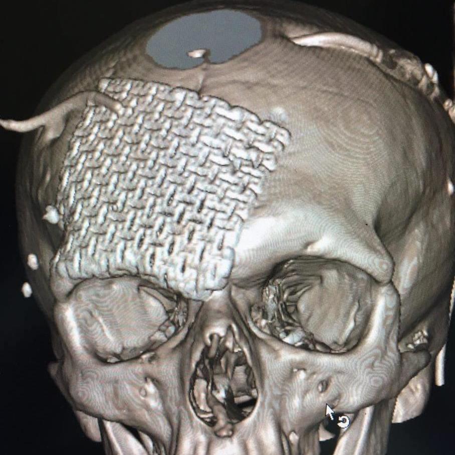 У Дніпрі лікарі провели унікальну операцію на голові пораненого бійця АТО (фото)
