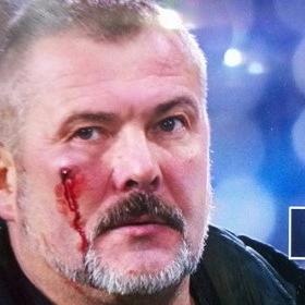 Нардепу Березі розбили обличчя під час футбольного матчу у Дніпрі (відео)