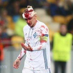 «Динамо» не зуміло обіграти «Янг Бойз» у Лізі Європи