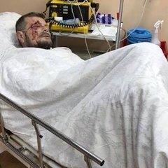 Стан Мосійчука важкий, - лікар