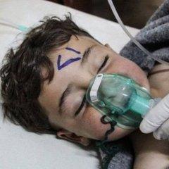 Попри «вічне вето» Росії, в ООН можуть знову голосувати за розслідування хімічних атак у Сирії