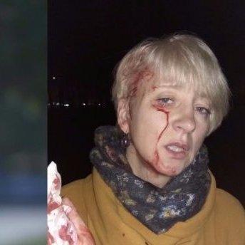 Побиття судді у Полтаві: постраждала назвала імена замовників нападу