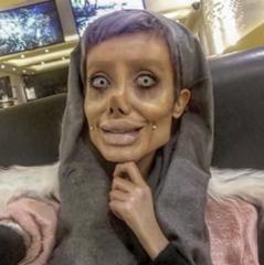 Виглядати, як труп: 19-річна дівчина пережила 50 операцій, аби бути схожою на Анжеліну Джолі (фото)