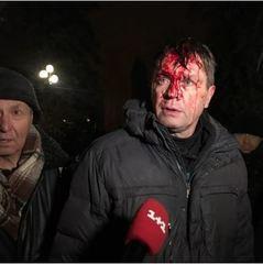 Силовики здійснили спробу штурму наметового містечка Саакашвілі, є постраждалі (фото, відео)