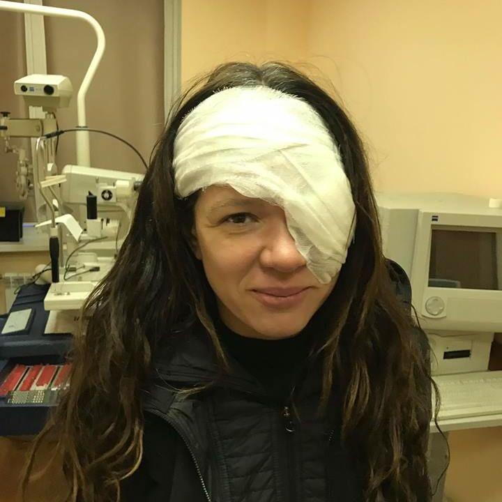 Руслана розказала про причину операції на оці