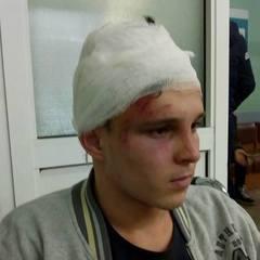 На Київщині п'ятеро школярів жорстоко побили сина чиновниці в новорічну ніч
