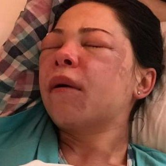 В Дніпрі жінку облили кислотою (фото)