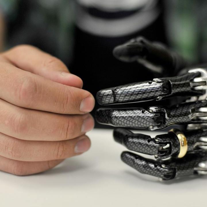 В Україні виготовили унікальний протез руки з інтелектом (відео)