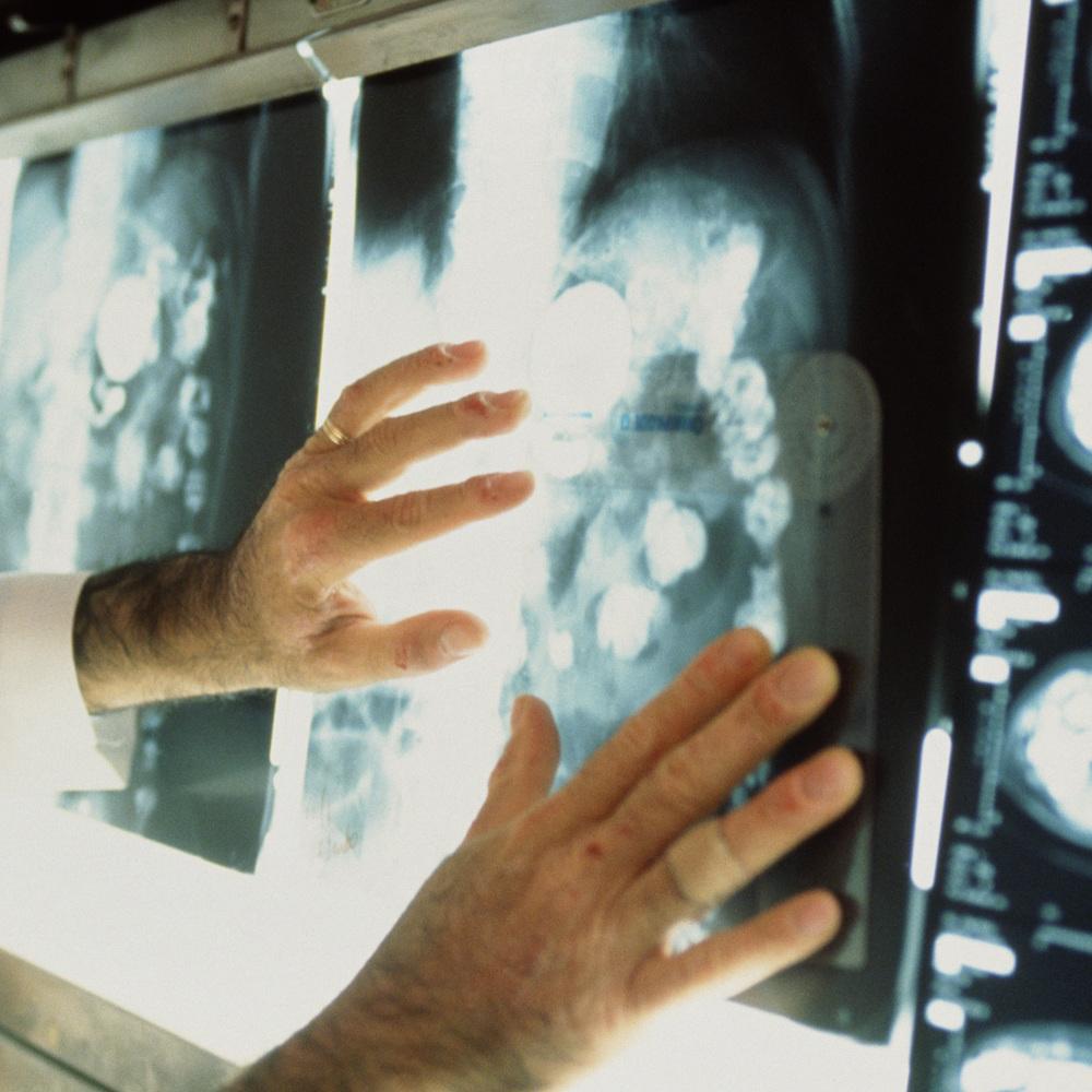 В Україні зареєстровано більше мільйона хворих на рак