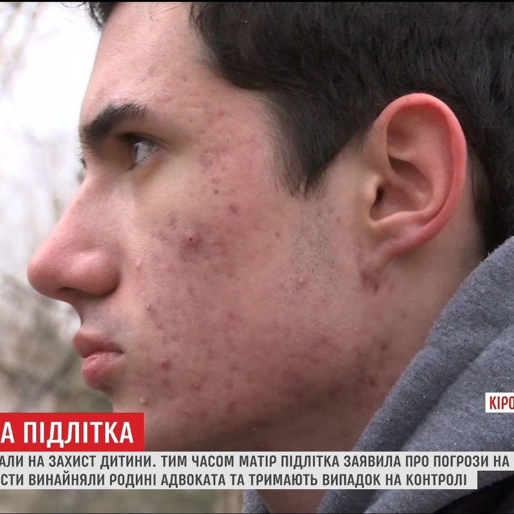 На Кіровоградщині доросла компанія покалічила школяра через зауваження (відео)