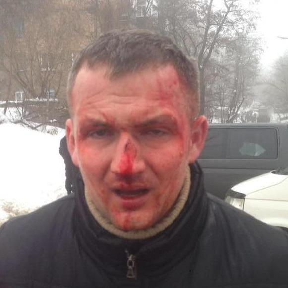 У Києві побили депутата (фото)