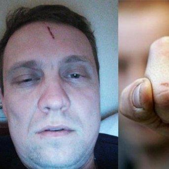 На Київщині побили депутата від УКРОПу: у партії назвали причину інциденту