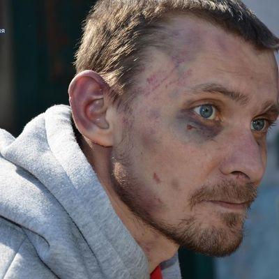 У Луганській області робітника за «неякісний» ремонт посадили на ланцюг і змушували копати город