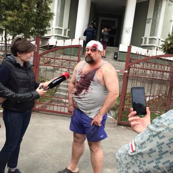 Біля скандального гуртожитку на Обухівській влаштували стрілянину: є поранені
