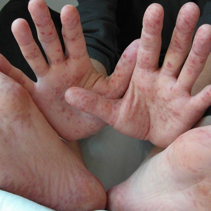 На Закарпатті за тиждень 89 людей захворіли на кір