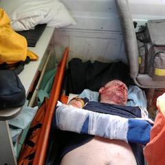 У Кременчуці невідомі жорстоко побили соратника Саакашвілі