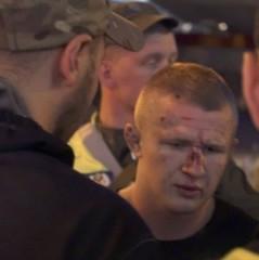 У Києві група хуліганів атакувала уболівальників «Ліверпуля», які приїхали на фінал ЛЧ (фото)