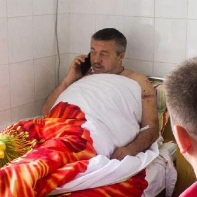 В Одеській області посеред ночі «в упор» стріляли в депутата