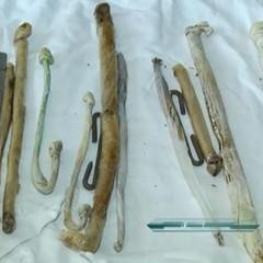 В Україні з'явиться музей речей, які хірурги витягли з пацієнтів (відео)