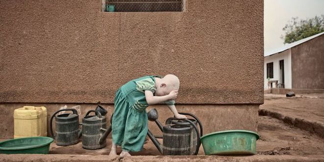 У Танзанії за вбивства дітей затримали 65 «чаклунів»