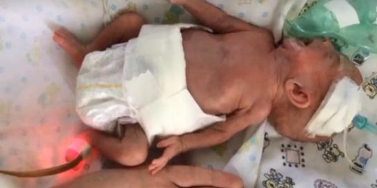 В Україні лікарі врятували 480-грамову дитину