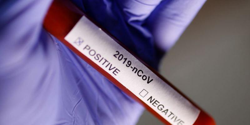 Франція: зафіксовано п'ятий випадок захворювання на новий коронавірус