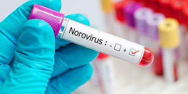 У магазини України потрапив норовірус з Франції