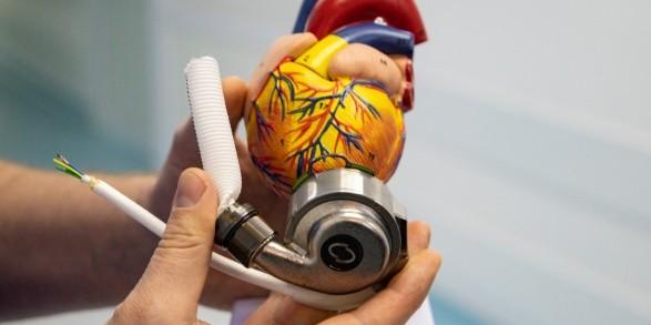 В Олександрівській клінічній лікарні Києва вперше імплантували механічне серце