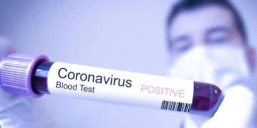 Коронавірус проник до Польщі