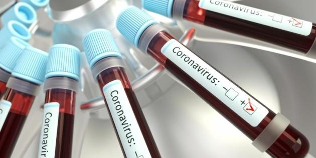 В Україні 2777 лабораторно підтверджених випадків COVID-19