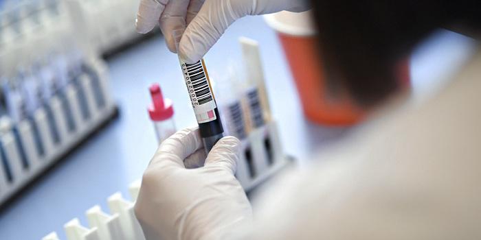 МОЗ: Спалах коронавірусу може виникнути на 5−10 день після Великодня
