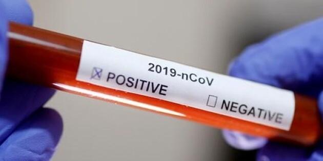 В Україні зафіксовано 7170 випадків коронавірусної хвороби COVID-19
