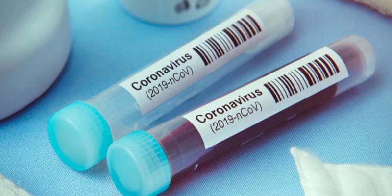 В Україні зафіксовано 9410 випадків коронавірусної хвороби COVID-19